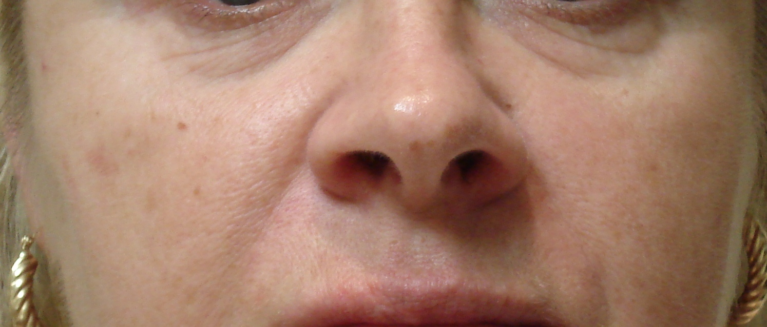 What can an IPL face treatment do for you? - Advanced Rejuvenation