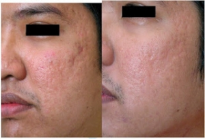 Acne-before-and-after-side2Beds