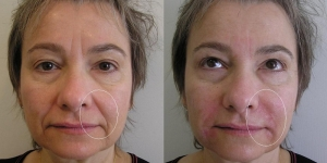 Middle-aged woman with poor filler results