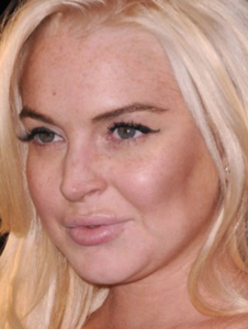 Lindsay Lohan: too much cheeks and too much lips