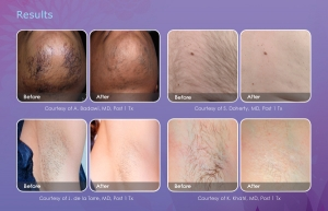 Before and after pics showing laser hair removal