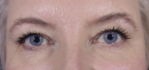 After: Tightened eyelids