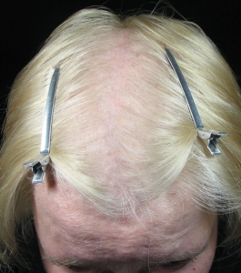 Scalp before microneedling treatments showing extensive hair loss