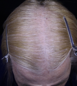 Scalp after 1st MN treatment