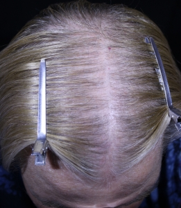 Scalp after 5 MN treatments showing improved hair growth
