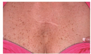 Freckly reddened rough chest skin before treatments