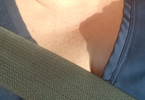 Textured sun damaged skin in decolletage